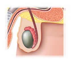 dolore sordo al testicolo destro e allinguine