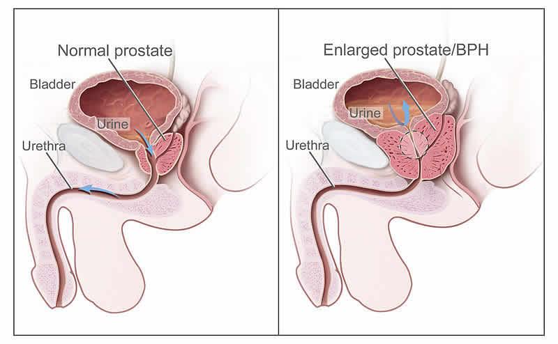 il sesso può causare infezioni alla prostata