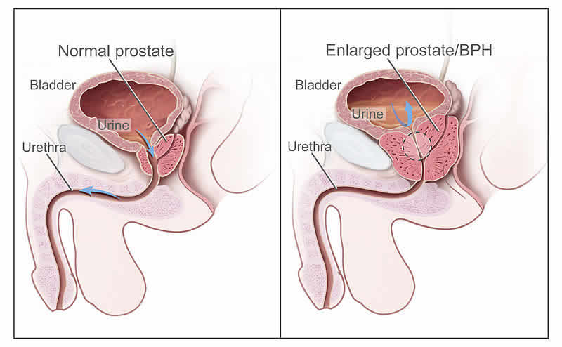 Disturbi alla prostata e disfunzioni sessuali maschili | ambersun.lt