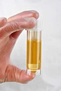 bruciore nelle urine